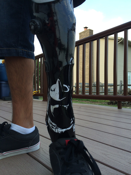 Nathan's New Leg #1