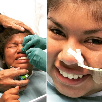 Kathryn's Mitrofanoff Surgery - NG is in!!!